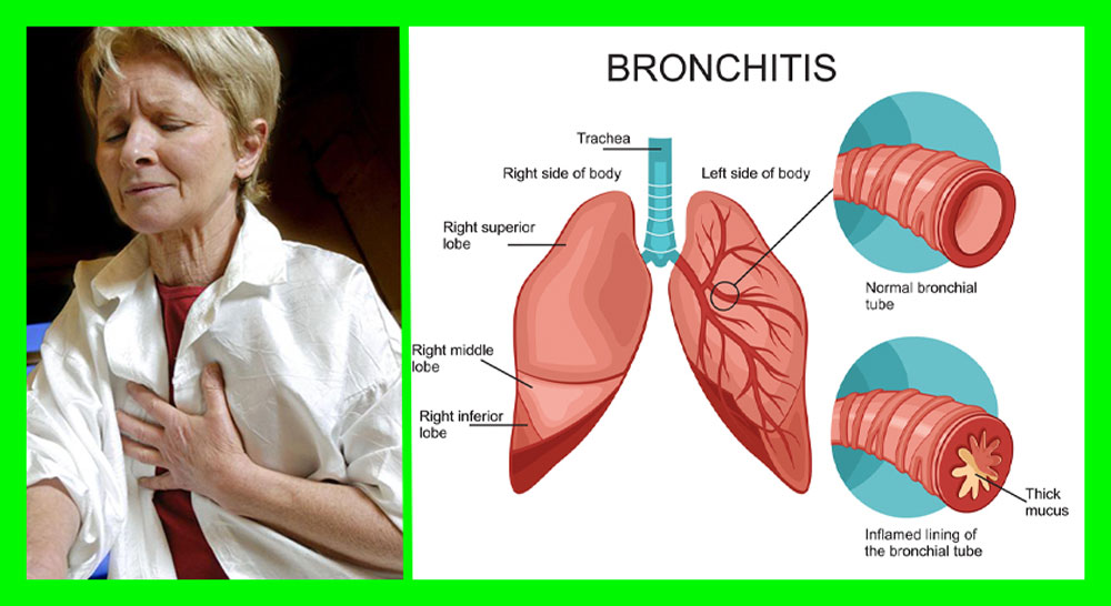 5-remedies-that-clear-up-chronic-bronchitis-in-no-time-1