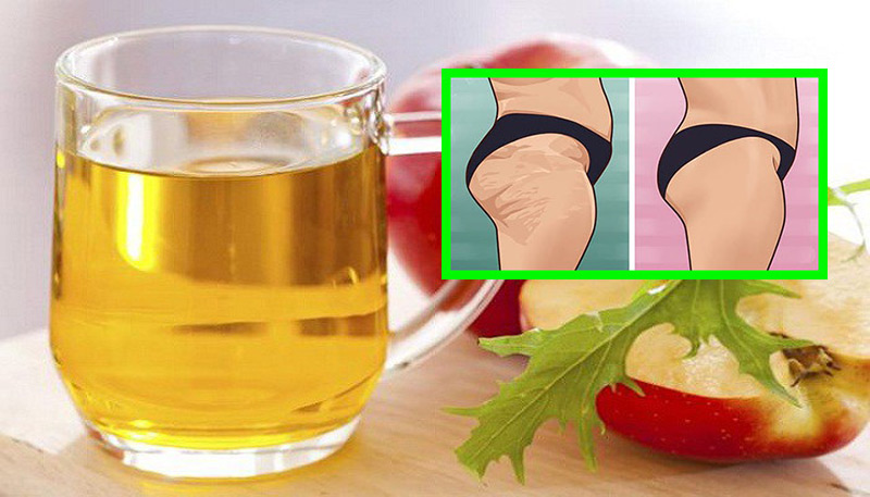 apple-cider-vinegar-helps-cellulite-disappear-magically