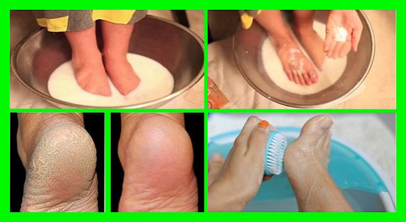 even-the-doctors-are-amazed-soak-your-feet-in-one-of-these-mixtures