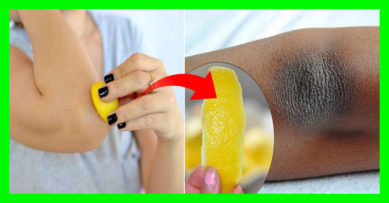 how-to-remove-dry-and-dark-skin-on-your-neck-elbows-knees-and-underarms