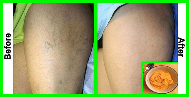 the-most-effective-natural-treatment-for-varicose-veins