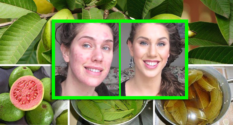use-guava-leaves-to-beat-wrinkles-acne-dark-spots-and-skin-allergies