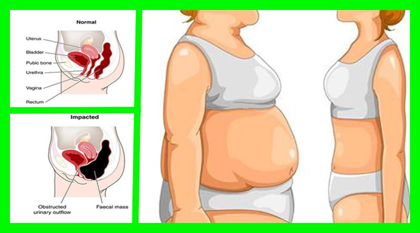 your-stomach-is-bloated-and-here-is-how-to-get-rid-of-it-1