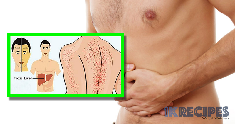 12-signs-of-a-damaged-liver-and-7-foods-that-will-heal-it