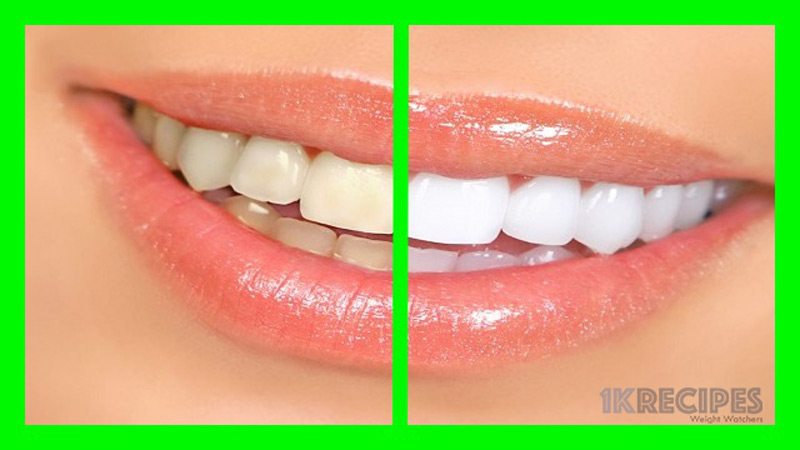 how-to-whiten-your-teeth-using-natural-remedies-and-why-you-should-do-it