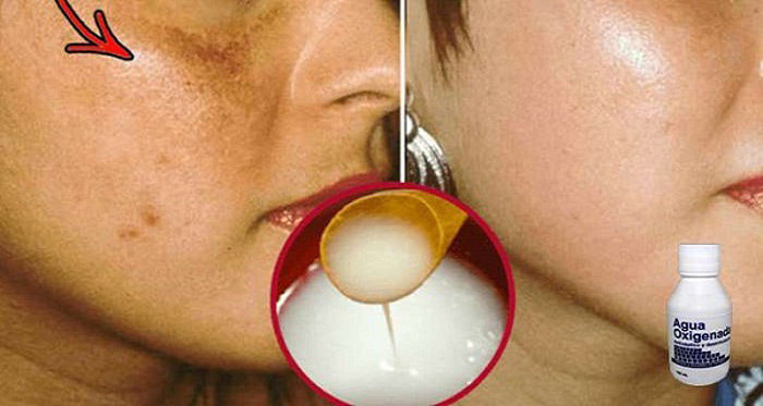 homemade-recipe-disappears-spots-and-dark-skin-proven