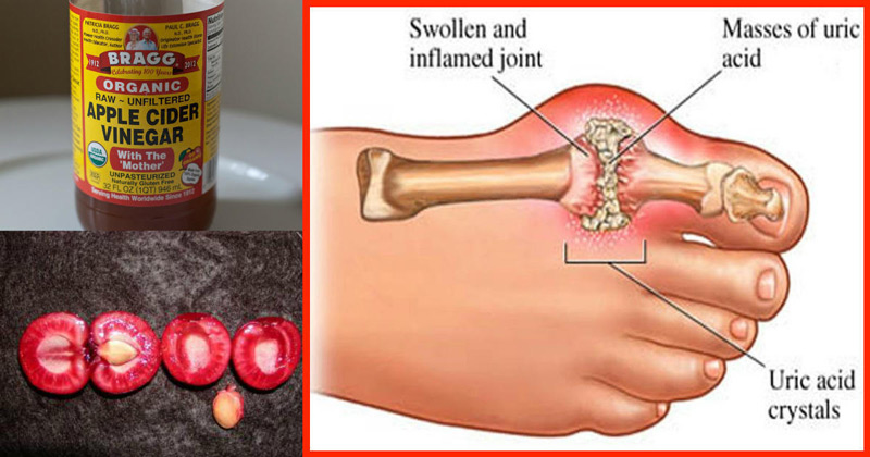 best home remedy to cure gout what foods is high in uric acid can you have gout in your hip joint