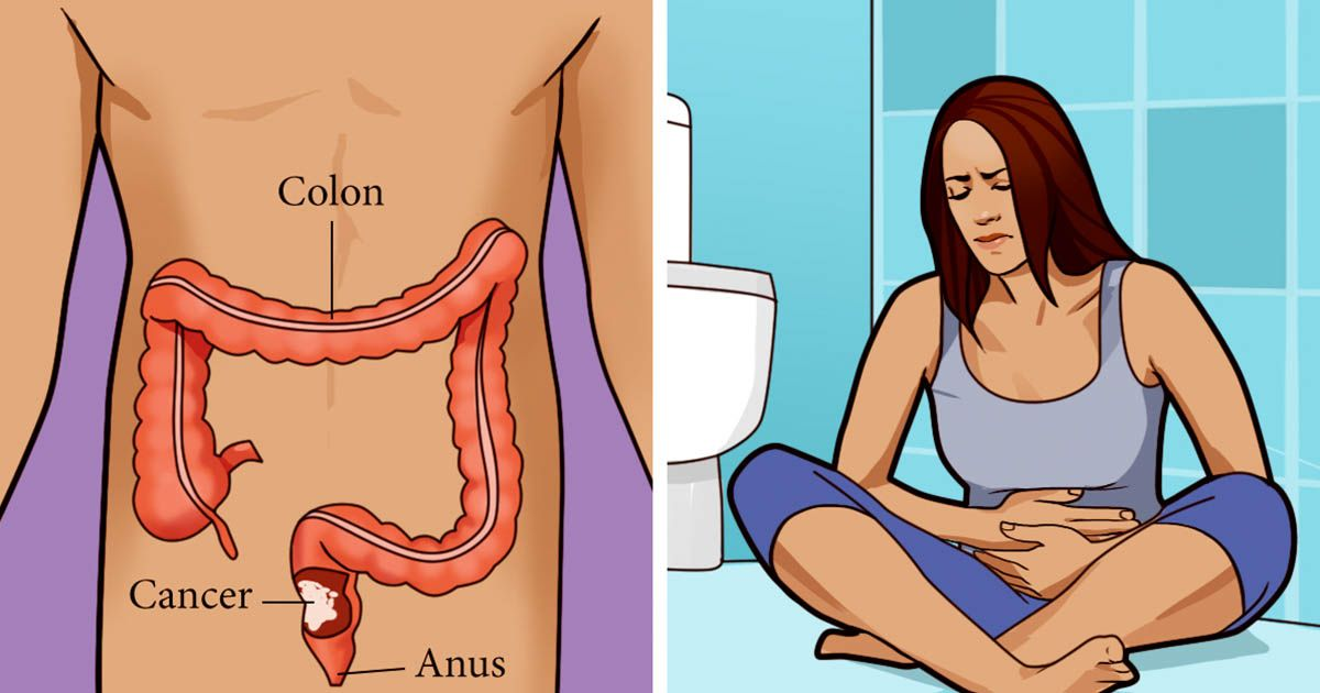 Colon Cancer Causes Symptoms And Treatment 1k Recipes